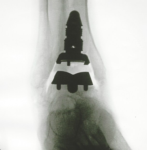 Flouroscopic view of my new Wright Inbone 2 Ankle Replacement