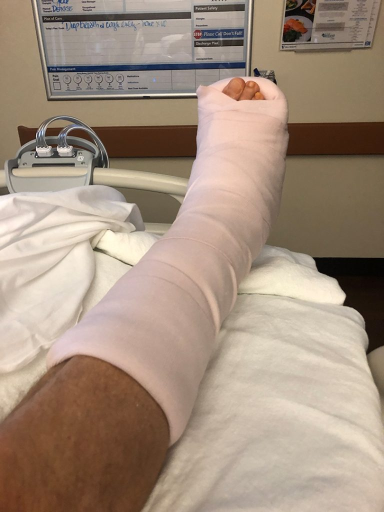 Massive splint protects my total ankle replacement surgery.