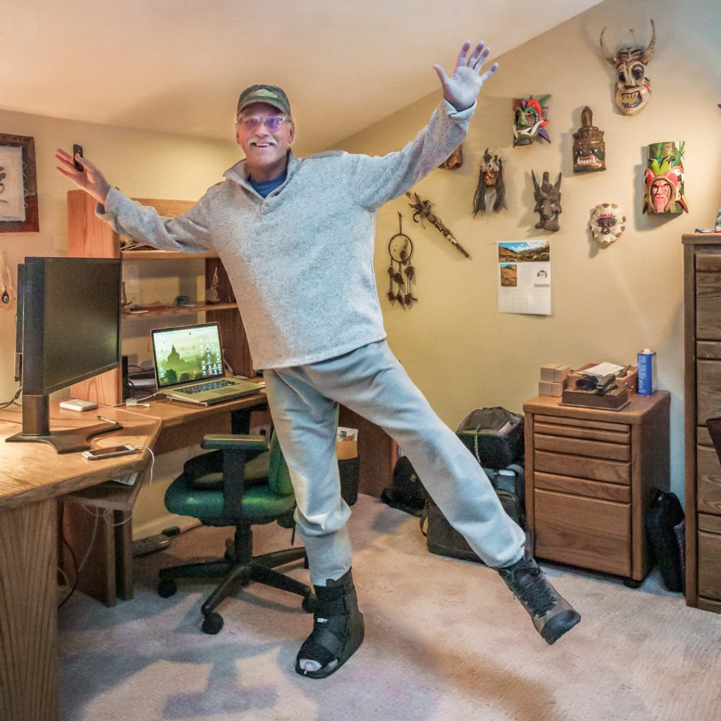 100% Weight-bearing after Surgery!  Here I am in my office only four weeks after ankle replacement surgery and I'm 100% weight-bearing.
